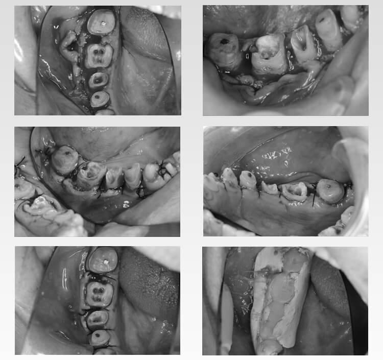 全顎的治療途中1