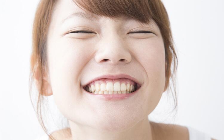 短期間で歯並びを美しく見せるセラミック矯正
