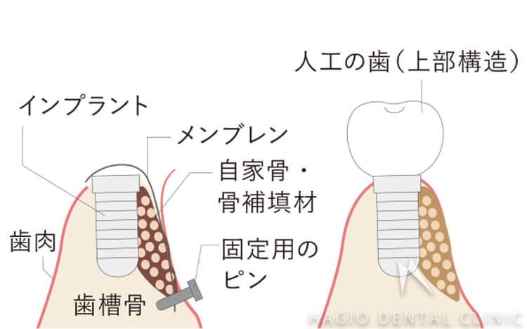 GBR(骨組織誘導再生法)