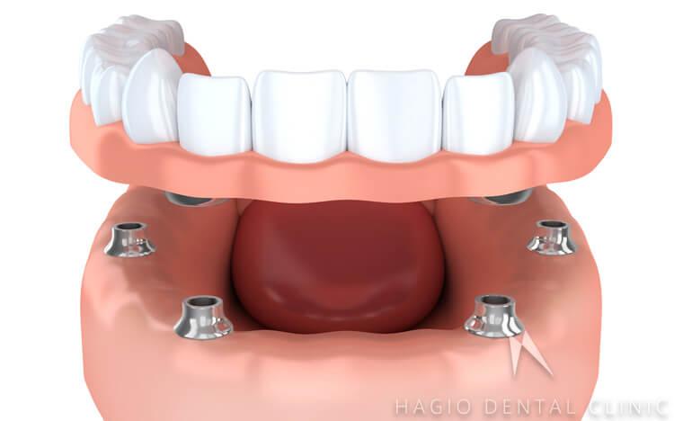 全ての歯を失った場合のインプラント