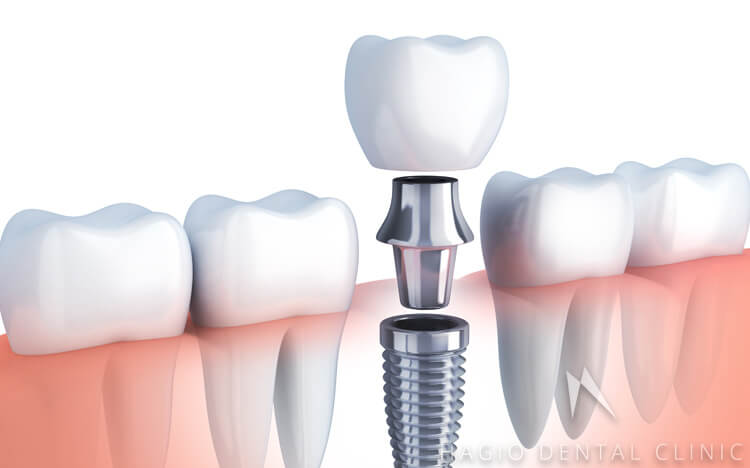 歯を1本失った場合のインプラント