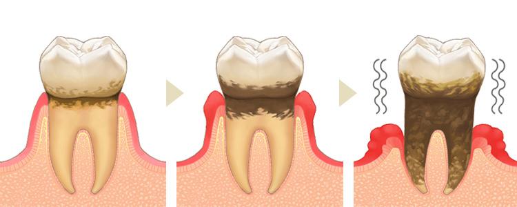 歯を失う原因となる歯周病