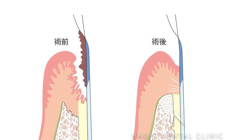 歯周治療における再生療法